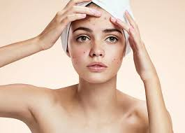How to Clear Acne Naturally from Face and Body?